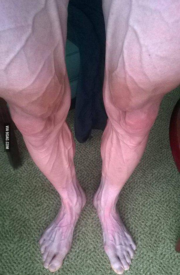 волосатые ноги не русских фото-иж2
